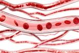 """血脂升高要如何預防?哪些食物是血管的""""清道夫""""?"""